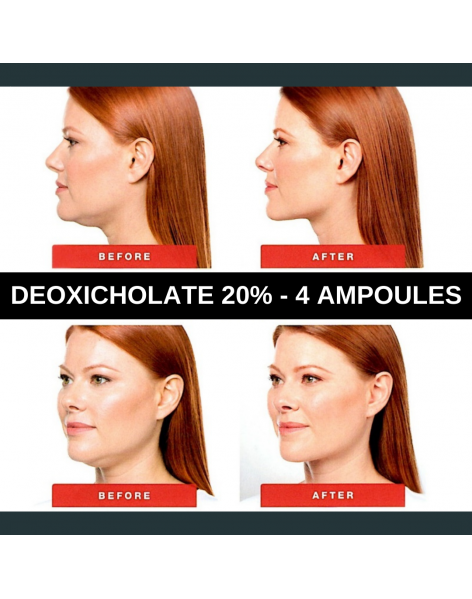 "DXYPLUS 20% (deoxycholate acid) injection 20 mg/mL - 8ML  "" Similar products Kybella"""